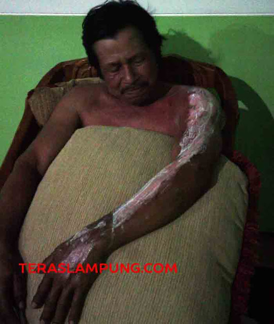 Sidi (60) salah satu warga yang mengalami luka bakar ditangan saat menyelamatkan istri dari kobaran api yang membakar rumahnya di Jalan Harimau 4, Kelurahan Sukamenanti Baru, Kedaton, Bandarlampung, Rabu malam sekitar pukul 23.30 WIB