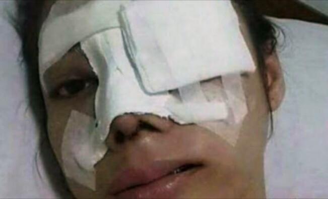 Foto Alice yang tersebar di medsos dan media online dan disebut sebagai Devina Widjaja.