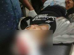 Haryanto kepalanya luka parah karena ditembak begal.