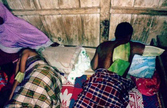 Korban luka bakar akibat sambaran petir di Lampung Utara.