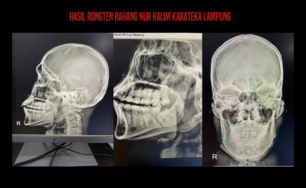 Hasil ultrasonologi yang menunjukkan tulang rahang karateka Lampung, Nurhalim Arlendi, tulang rahangnya pahah setelah ditendang lawannya di arena PON XX Papua, Rabu (13/10/2021).
